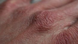 Kosmetik trockene Haut Hand